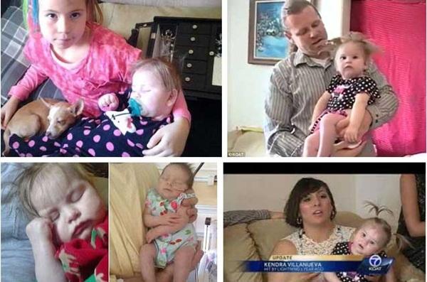 Bị sét đánh trúng khi đang mang thai tháng cuối, sản phụ được đưa vào viện cấp cứu và hình hài của đứa trẻ khiến ekip mổ choáng váng-6