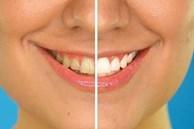 8 cách làm trắng răng tự nhiên đơn giản ngay tại nhà