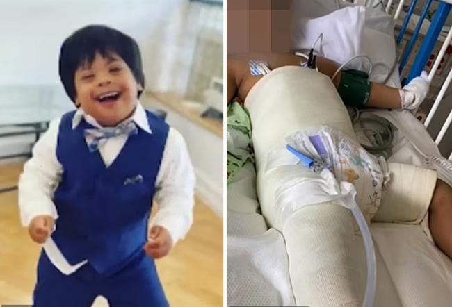 Bé trai 3 tuổi mắc hội chứng Down rơi từ tầng 5 xuống đất gây xôn xao cả khu phố, cảnh sát cũng vào cuộc điều tra-7