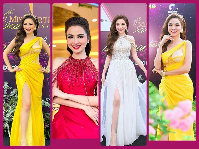Hoa hậu Diễm Hương: Tôi bị bệnh hiếm, căn bệnh mà 10.000 người mới có 1 người bị-1