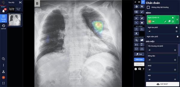 AI trợ lý bác sĩ - Ứng dụng trí tuệ thông minh bảo vệ thành trì chống dịch Covid-19-1