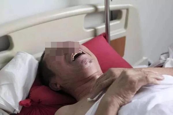 Người đàn ông đau vai suốt 1 năm được chẩn đoán mắc ung thư gan, bác sĩ chỉ ra 2 thói quen là thủ phạm mà nhiều người mắc phải-1