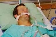 SARS-CoV-2 có thể tồn tại trong mô dương vật 9 tháng, gây rối loạn chức năng nội mô, liệt dương