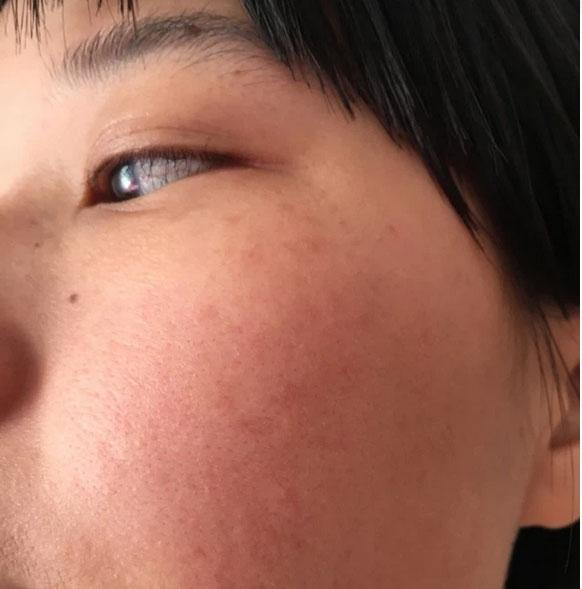 """Bác sĩ chỉ ra sai lầm khi chăm sóc da nám, khiến da bị cày xới, bào mòn"""" quá mức cần thiết-3"""