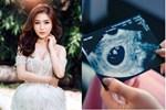 NÓNG: Giữa đêm, Hương Tràm công khai ảnh siêu âm, thông báo mang thai sau 2 năm sang Mỹ?