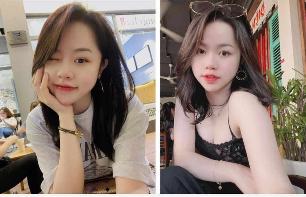 Bồ cũ Quang Hải công khai ảnh da đầy mụn trước đây, netizen sửng sốt vì thay đổi ngỡ ngàng-4