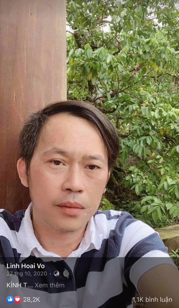 Netizen soi loạt chi tiết nghi vấn NS Hoài Linh không có vết sẹo mổ u tuyến giáp, xóa cả ảnh vì sơ hở, thực hư ra sao?-6