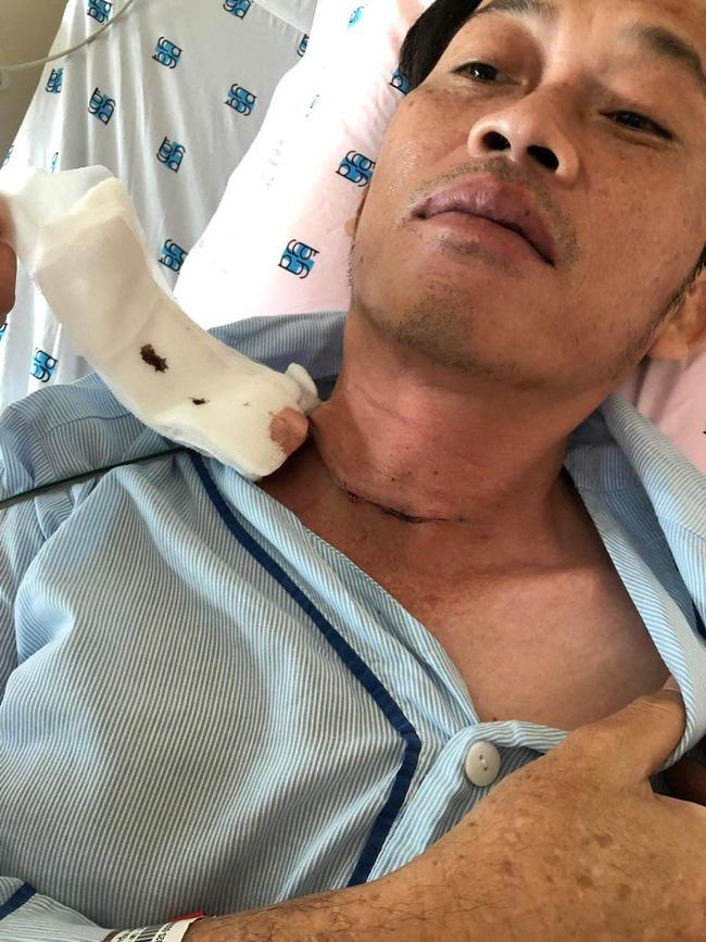 Lại lan truyền thông tin giấy làm phẫu thuật K tuyến giáp của NS Hoài Linh, có chi tiết không như những gì công bố?-3