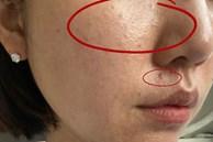 Cải thiện lỗ chân lông to ngoác: 5 điều nhất định phải làm để da dẻ láng mịn không gợn vết tích