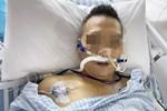 Một người đàn ông bị suy tạng sau khi nuốt mật cá chép: Chuyên gia khẳng định đây là bộ phận trong con cá không nên ăn!-5