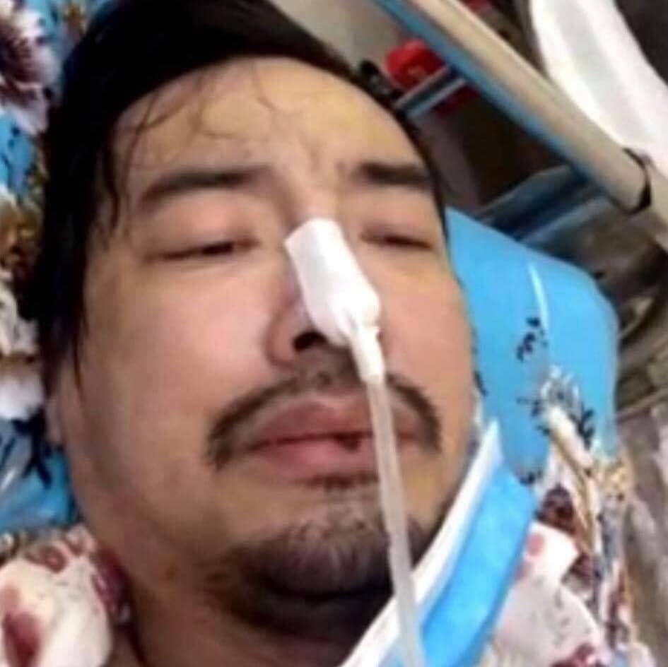 Ca sĩ Việt Quang bị viêm phổi nặng, đang trong tình trạng nguy kịch-1