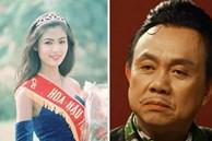 Hoa hậu Thu Thủy, cố nghệ sĩ Chí Tài đều qua đời vì đột quỵ: Cảnh báo 7 dấu hiệu trước khi cơn đột quỵ xảy ra, người trẻ cũng có thể mắc