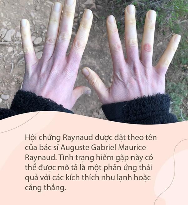 Căn bệnh khiến ngón tay đột ngột chuyển sang màu trắng hoặc xanh dị thường, được ví như bàn tay của quỷ-1