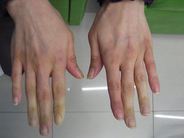 Căn bệnh khiến ngón tay đột ngột chuyển sang màu trắng hoặc xanh dị thường, được ví như bàn tay của quỷ-2