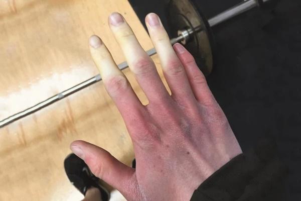 Căn bệnh khiến ngón tay đột ngột chuyển sang màu trắng hoặc xanh dị thường, được ví như bàn tay của quỷ-3