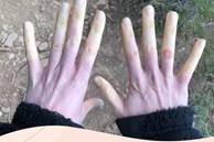 Căn bệnh khiến ngón tay đột ngột chuyển sang màu trắng hoặc xanh dị thường, được ví như 'bàn tay của quỷ'