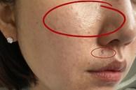 Combo da dầu mụn 'kinh khủng khiếp': Bước làm sạch da nên dùng gì và tránh gì?