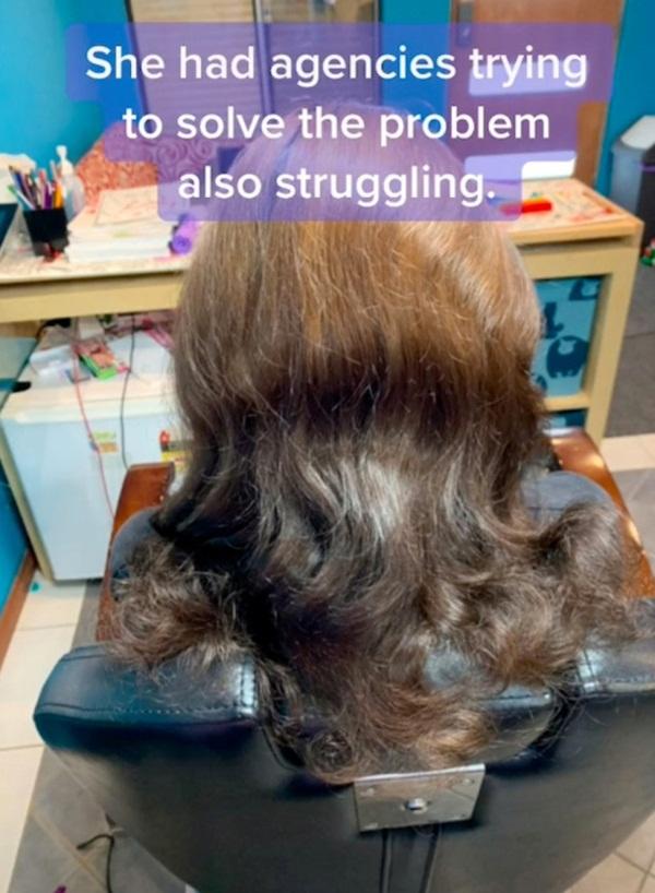 Mang mái tóc bẩn thỉu, lúc nhúc hàng ngàn con chấy đến phòng khám, cô gái khiến chuyên gia thảng thốt vì sốc và kết quả đáng kinh ngạc-5