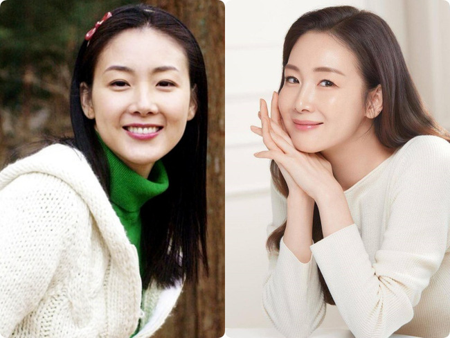Người đẹp khóc Choi Ji Woo: Từng có giai đoạn mặt sưng phù cứng đơ vì tiêm Botox-3