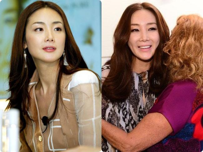 Người đẹp khóc Choi Ji Woo: Từng có giai đoạn mặt sưng phù cứng đơ vì tiêm Botox-4