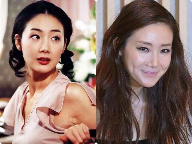 Người đẹp khóc Choi Ji Woo: Từng có giai đoạn mặt sưng phù cứng đơ vì tiêm Botox-5