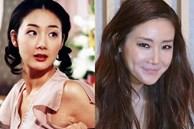 'Người đẹp khóc' Choi Ji Woo: Từng có giai đoạn mặt sưng phù cứng đơ vì tiêm Botox