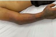 Tự chữa rắn cắn khiến nam thanh niên 27 tuổi hoại tử bàn tay