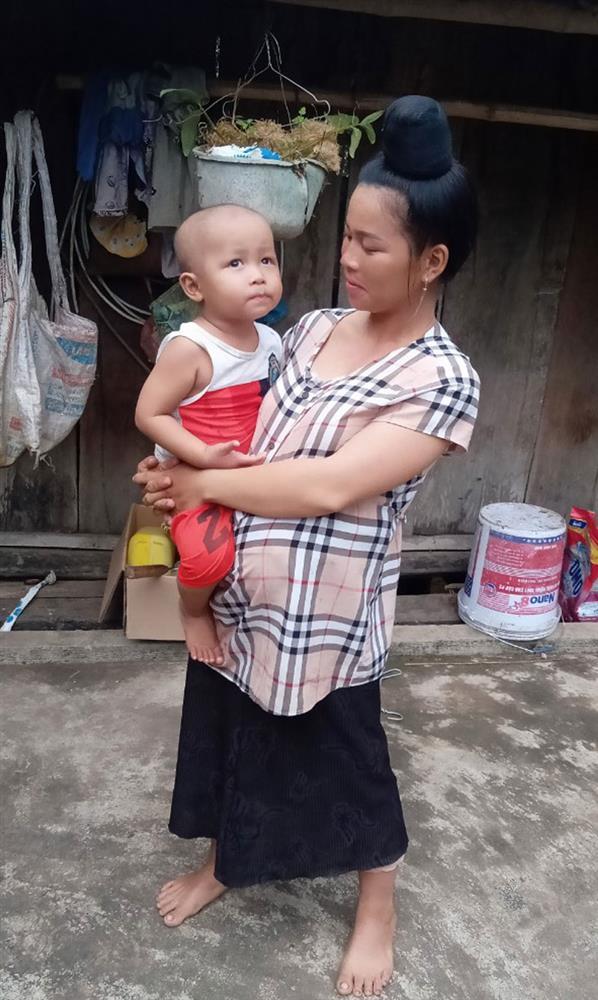 Bố cậu bé 3 tuổi mắcung thư võng mạc vừa hết cách ly ở Viện K: những bữa cơm không thịt và ước mơ con sớm khỏi bệnh-3