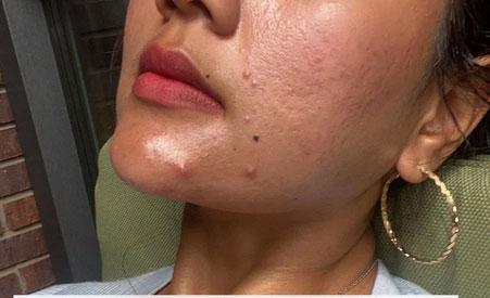 Nếu bạn cứ làm 4 bước skin care này thì lỗ chân lông trên da sẽ ngày càng to ngoác-1