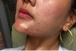 Nếu bạn cứ làm 4 bước skin care này thì lỗ chân lông trên da sẽ ngày càng to ngoác