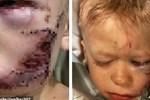 """Phải khâu 90 mũi vì xả thân cứu em gái khỏi chó dữ, cậu bé được thế giới phong 'người hùng"""" và khuôn mặt hiện tại gây xúc động mạnh"""