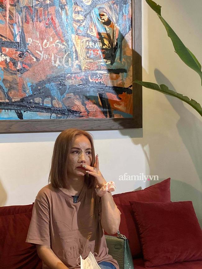 Cận cảnh gương mặt của Hoàng Yến sau khi bị chồng cũ đấm gãy mũi-4