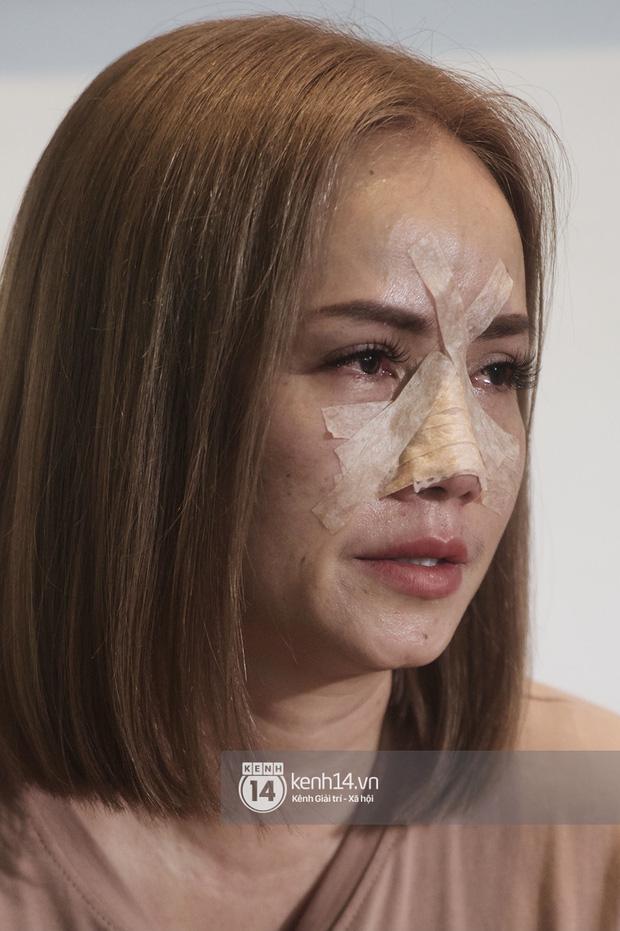 """Cô Xuyến"""" Hoàng Yến bị bạo hành: Bị chồng dọa giết nhưng vẫn khẳng định Anh Thắng là người tôi yêu nhiều nhất""""-1"""