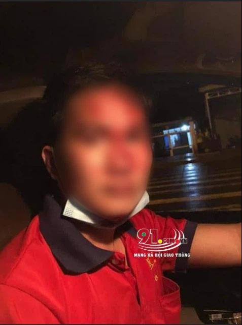Vụ tài xế taxi bị gã đàn ông côn đồ vô cớ hành hung dã man: Người trong cuộc lên tiếng-2