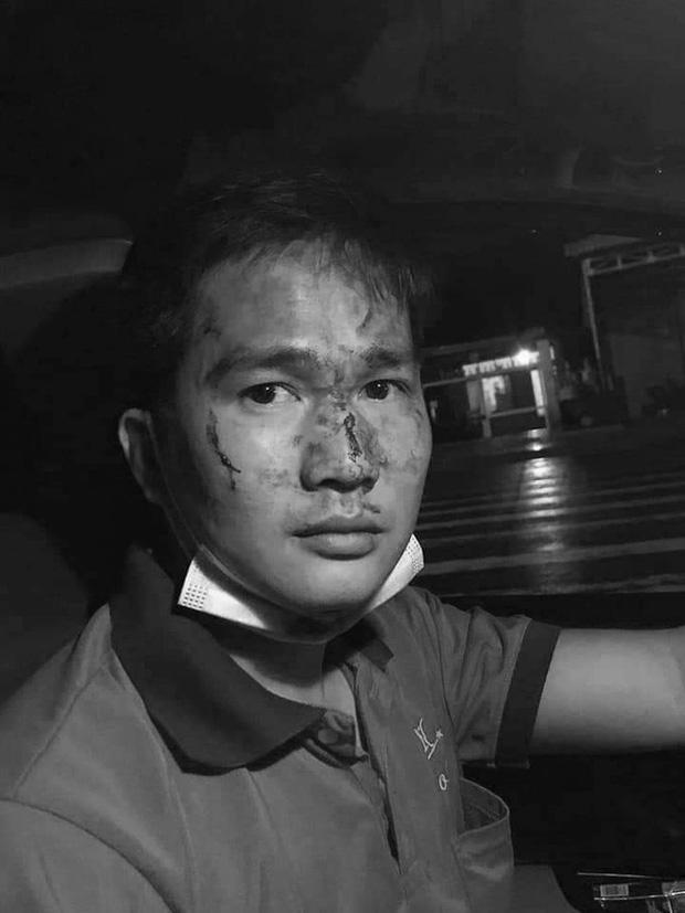 Thanh niên đánh tài xế taxi đổ máu ở Bình Phước đã đưa vợ, con rời khỏi nơi tạm trú-2