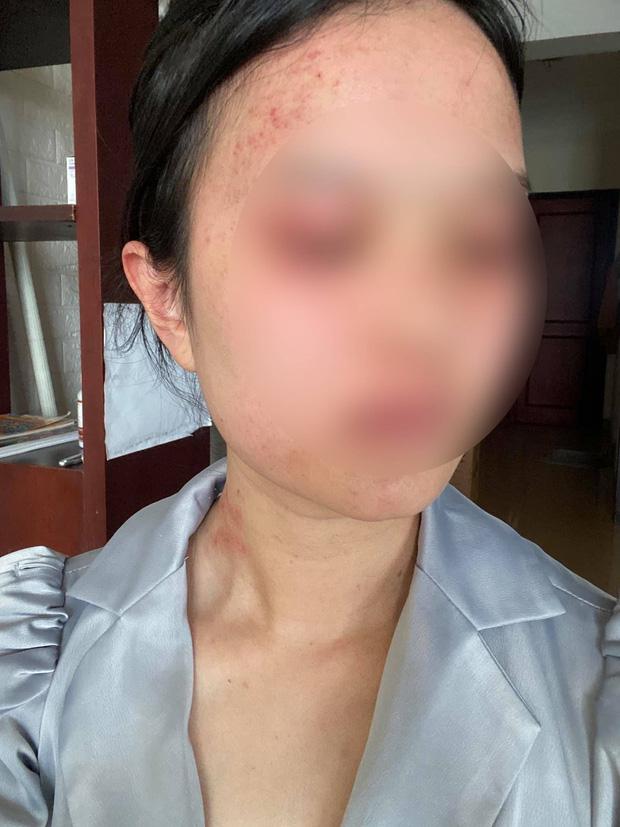 Clip gây phẫn nộ: Đề nghị ly hôn, vợ bị chồng liên tục đánh đập, bóp cổ trong phòng ngủ-2