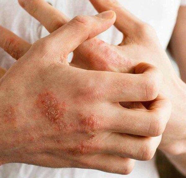 Không quan trọng tuổi tác, phụ nữ nếu có 9 đặc điểm này trên cơ thể chứng tỏ hệ miễn dịch vô cùng yếu ớt, dễ nhiễm bệnh hơn hẳn người khác-7