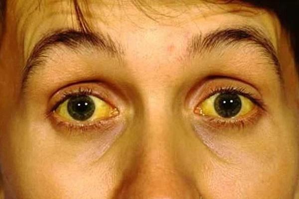 3 biểu hiện bất thường trên khuôn mặt cho thấy bạn đang có nguy cơ mắc ung thư gan-1