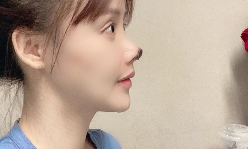 Mở rộng tai, làm teo cơ chân, phụ nữ Trung Quốc bất chấp để đẹp lên-3