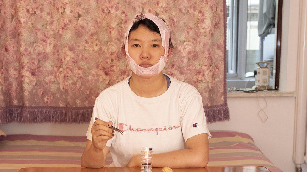 Mở rộng tai, làm teo cơ chân, phụ nữ Trung Quốc bất chấp để đẹp lên-5