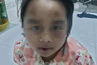 Cha về quê có việc gửi con cho cô và dượng nhờ trông hộ, bé gái 6 tuổi bị đánh đập vì thường xuyên tự ý bỏ đi chơi