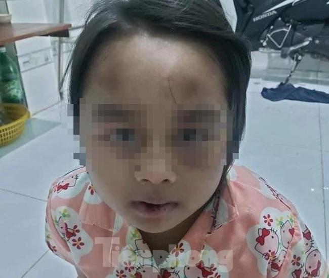 Cha về quê có việc gửi con cho cô và dượng nhờ trông hộ, bé gái 6 tuổi bị đánh đập vì thường xuyên tự ý bỏ đi chơi-2
