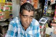 Mắc hội chứng hiếm gặp, người đàn ông ngủ li bì 300 ngày/năm