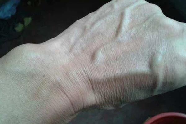Người gan kém thường có 3 thay đổi bất thường ở bàn tay, đi khám ngay vì rất dễ là dấu hiệu của ung thư gan-1