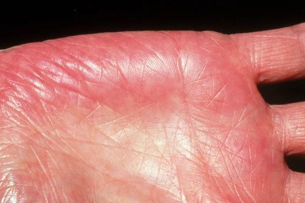 Người gan kém thường có 3 thay đổi bất thường ở bàn tay, đi khám ngay vì rất dễ là dấu hiệu của ung thư gan-2