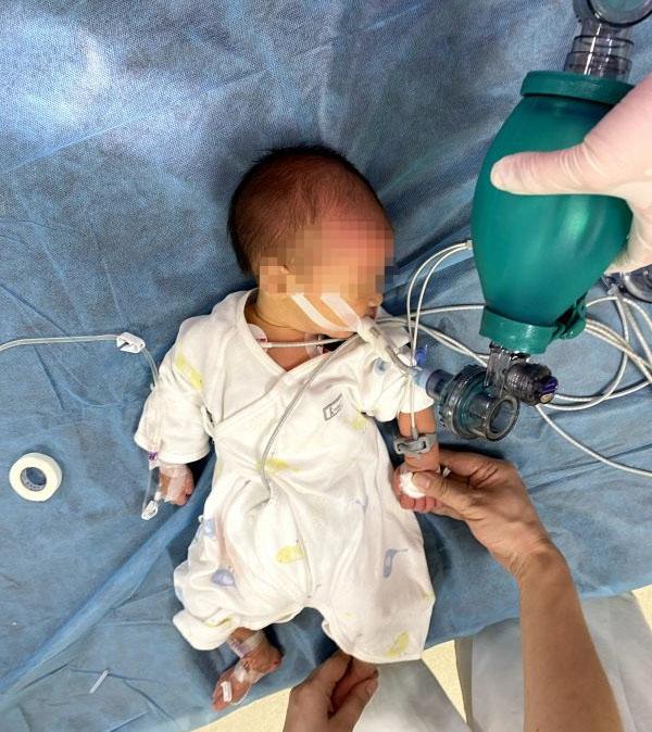 Bé sơ sinh 7 ngày tuổi bị sặc sữa tím tái toàn thân, không còn nhịp tim và hơi thở-1