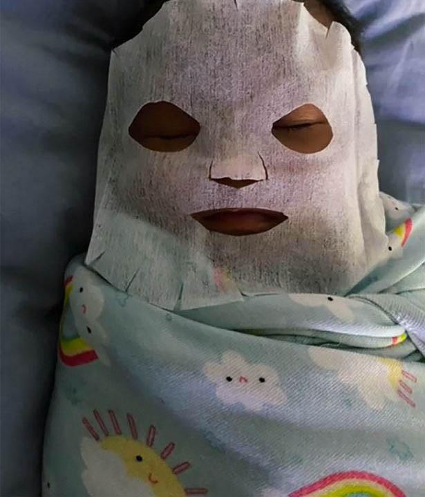 Thấy con 9 tuần tuổi bị nổi mụn ở mặt, người mẹ làm ngay chiếc mặt nạ đắp cho bé, biết thành phần nhiều người lo lắng-2