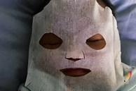 Thấy con 9 tuần tuổi bị nổi mụn ở mặt, người mẹ làm ngay chiếc mặt nạ đắp cho bé, biết thành phần nhiều người lo lắng