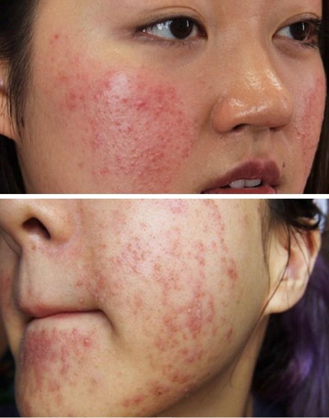 Thực hư loại nước xông thải độc da bị nhiễm corticoid, sao Việt nhiều người áp dụng-1