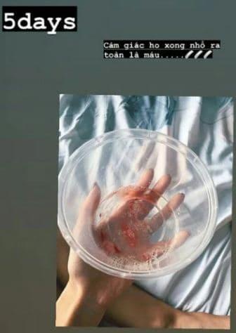 """Khả Ngân Hậu duệ mặt trời"""" bản Việt gây hoang mang khi tiết lộ 2 tay chằng chịt kim tiêm, sút cân trầm trọng và ho ra máu-3"""